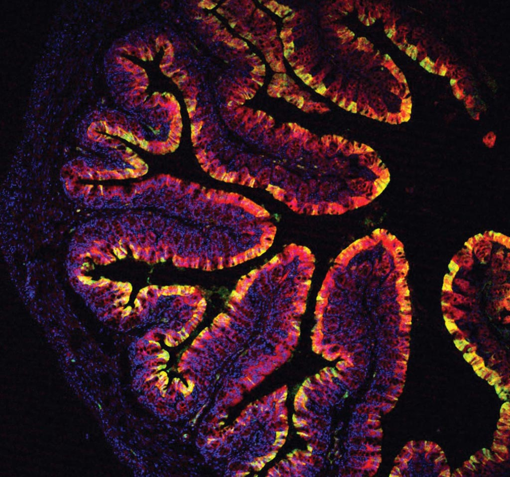 Image: A photomicrograph of a mouse colon from Cyp1a reporter mice after feeding on a diet supplemented with indole-3-carbinol (I3C) (Photo courtesy of Chris Schiering, Francis Crick Institute).