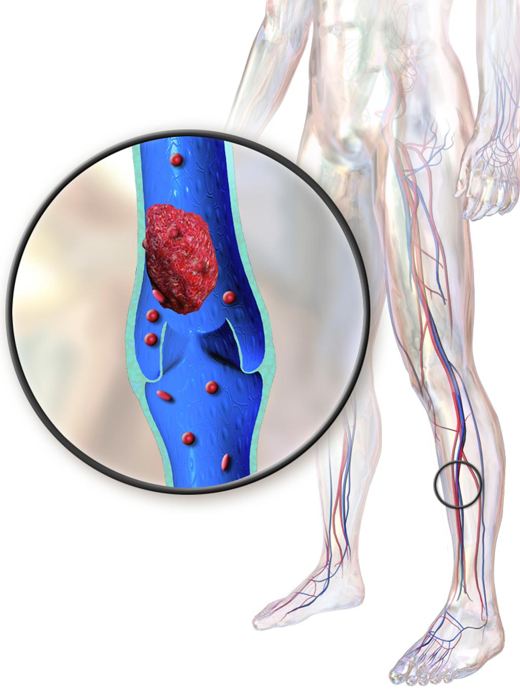 Image: An illustration depicting a deep vein thrombosis (Photo courtesy of Wikimedia Commons).