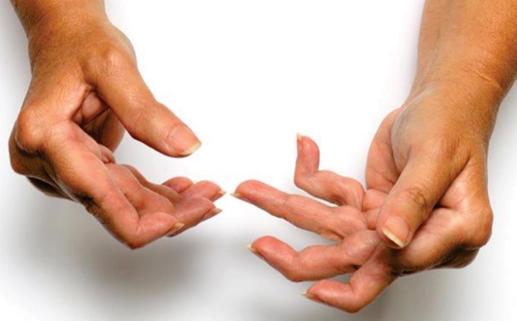 Ревматоидный артрит может вызвать ряд изнуряющих симптомов, включая боль и отек в суставах, усталость и депрессию (фото любезно предоставлено SPL).