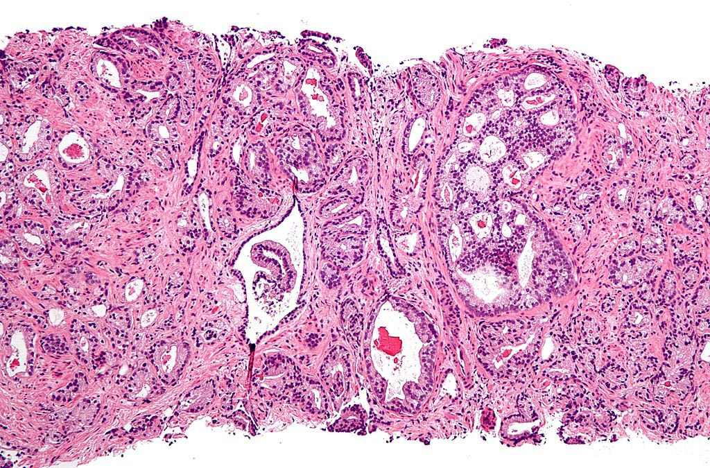 Image: A micrograph of prostate adenocarcinoma, acinar type, the most common type of prostate cancer (Photo courtesy of Wikimedia Commons).