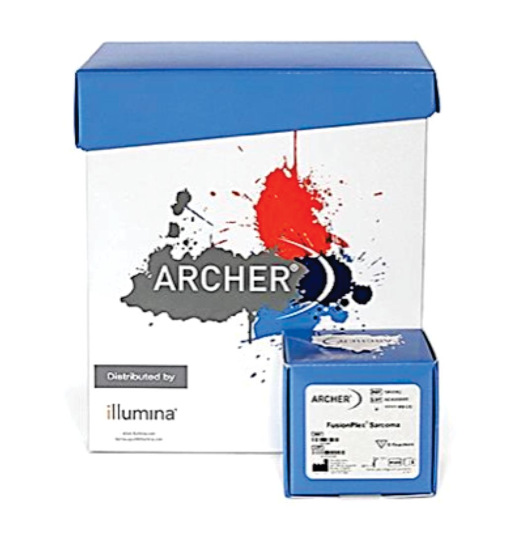 Image: The Archer FusionPlex Sarcoma Kit: A targeted sequencing assay to simultaneously detect and identify fusions of 26 genes associated with soft tissue cancers (Photo courtesy of Illumina).