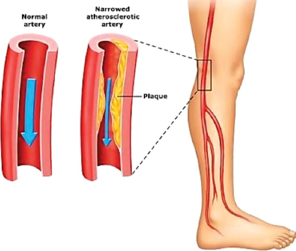 Image: A diagram of peripheral artery disease, blood vessels in the legs are the ones most often affected (Photo courtesy of Emed Pain Management Clinic).