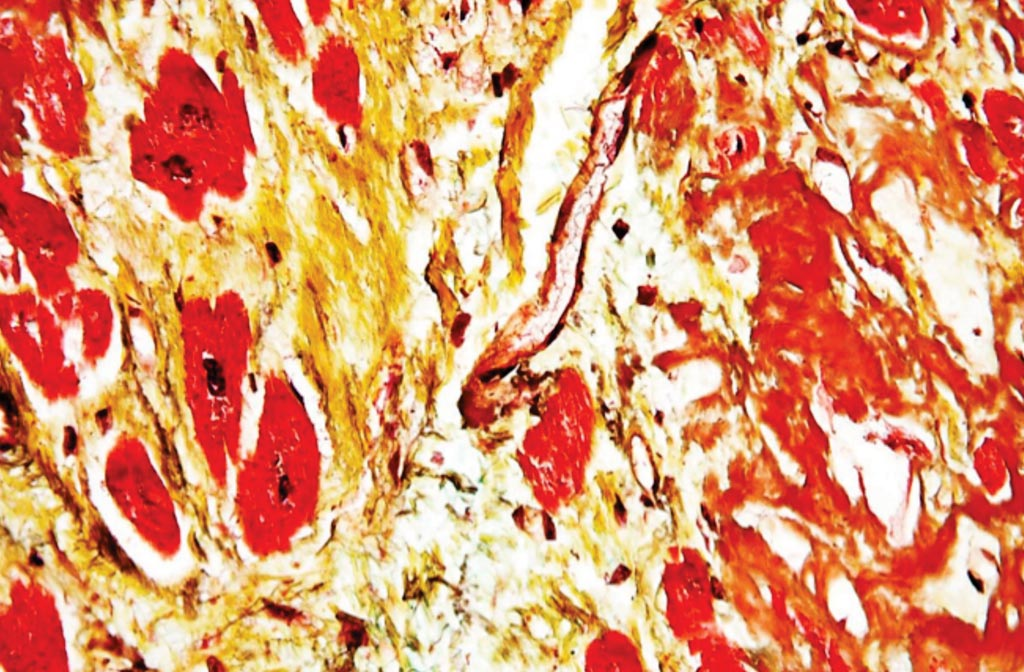Image: High magnification micrograph of senile cardiac amyloidosis from an autopsy specimen (Photo courtesy of Nephron).