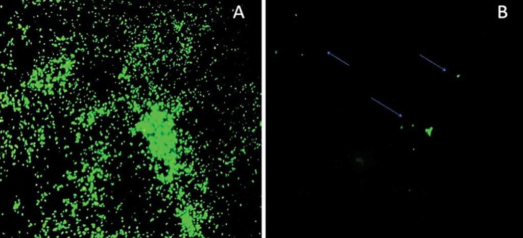 Image: Auramine O stained Mycobacterium leprae in FFPE tissue section under ×40 objective of light-emitting diode fluorescence microscope A: Sample with high BI; B. Sample with low BI (Photo courtesy of Armauer Hansen Research Institute).