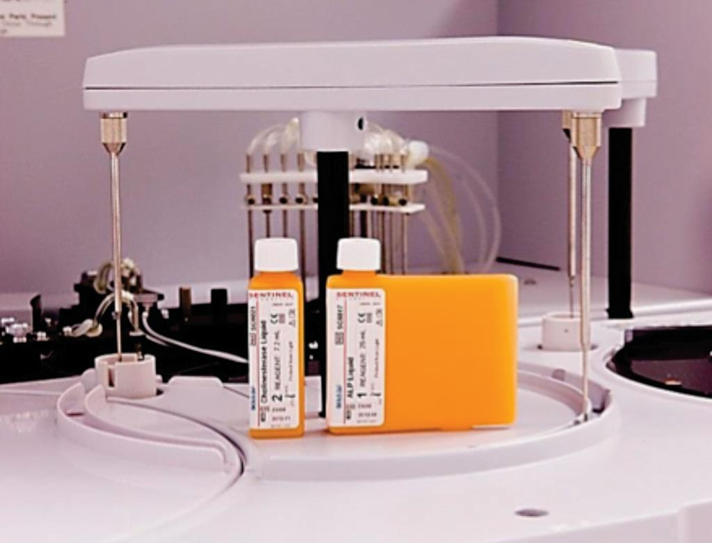 Image: An albumin immunoturbidimetric assay urine or serum plasma; standard microalbumin range is 0.4-500mg/L (Photo courtesy of Sentinel Diagnostics).