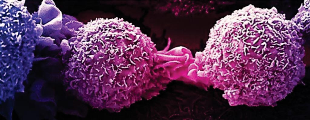 Image: A scanning electron micrograph of dividing breast cancer cells (Photo courtesy of National Cancer Institute).