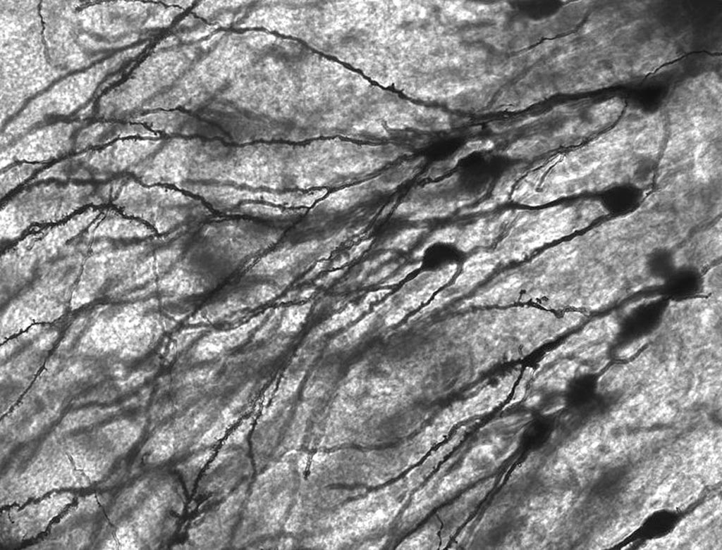 Image: Golgi-stained neurons in human hippocampal tissue (Photo courtesy of Wikimedia Commons).