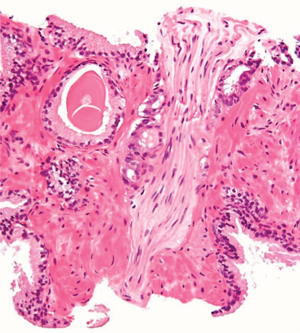 Image: A photomicrograph from a prostate biopsy of prostatic adenocarcinoma, conventional (acinar) type, the most common form of prostate cancer (Photo courtesy of Nephron).