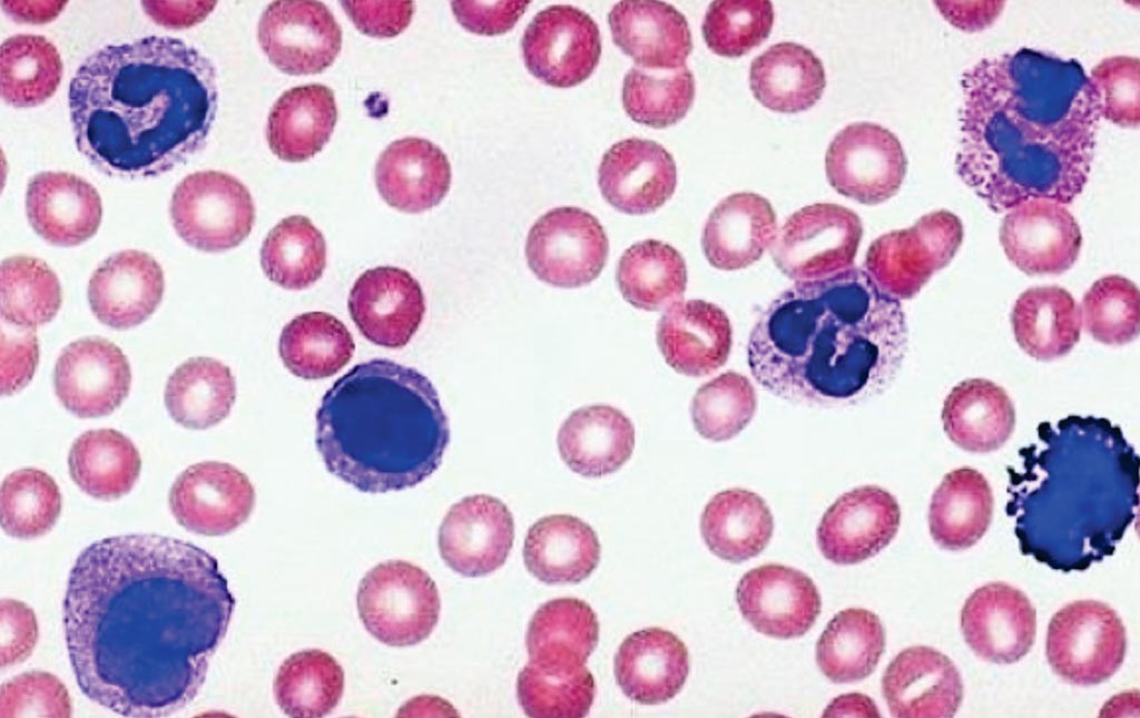Image: A blood smear showing various leukocytes used to assess the complete white blood cell count by microscopy (Photo courtesy of the University of Minnesota).