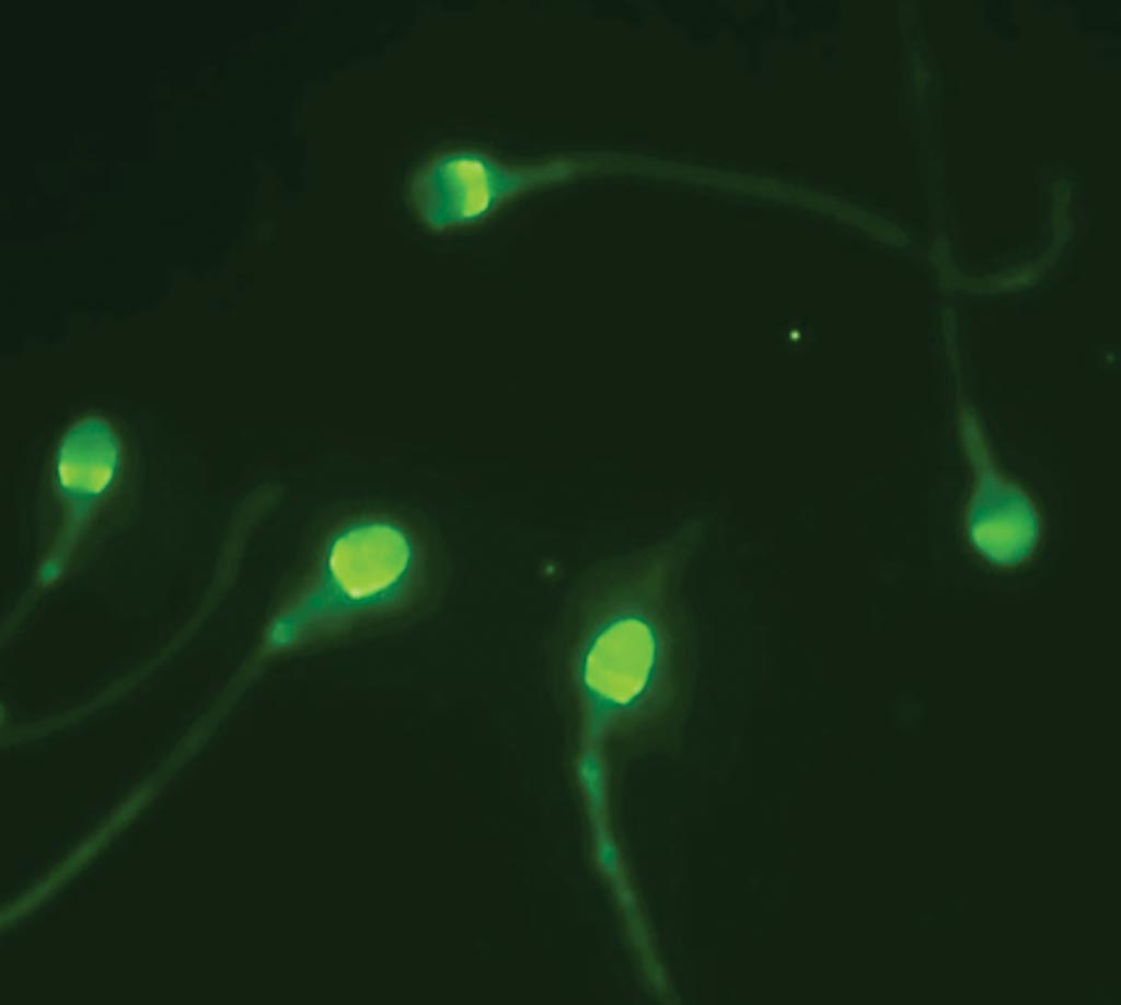 Image: The Cap‐Score detects and analyzes localization patterns using fluorescent microscopy to distinguish fertile from infertile sperm cells (Photo courtesy of Androvia LifeSciences).