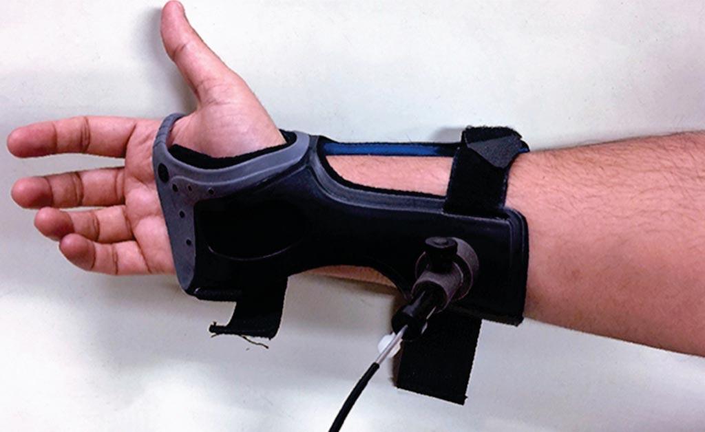 Это устройство использует лазерную технологию для определения уровня глюкозы под кожей, что является альтернативой болезненному покалыванию (фото любезно предоставлено Университетом Миссури-Колумбия).
