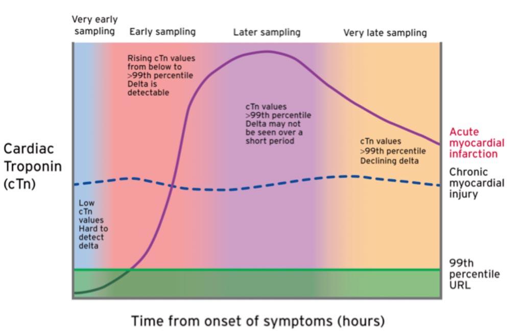 Иллюстрация ранней кинетики кардиотропонина у пациентов после острого поражения миокарда, включая острый инфаркт миокарда (фото предоставлено группой ESC Scientific Document Group).