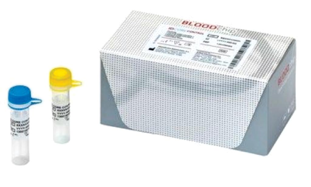 Image: The ID Core XT blood group genotyping kit (Photo courtesy of Progenika Biopharma).