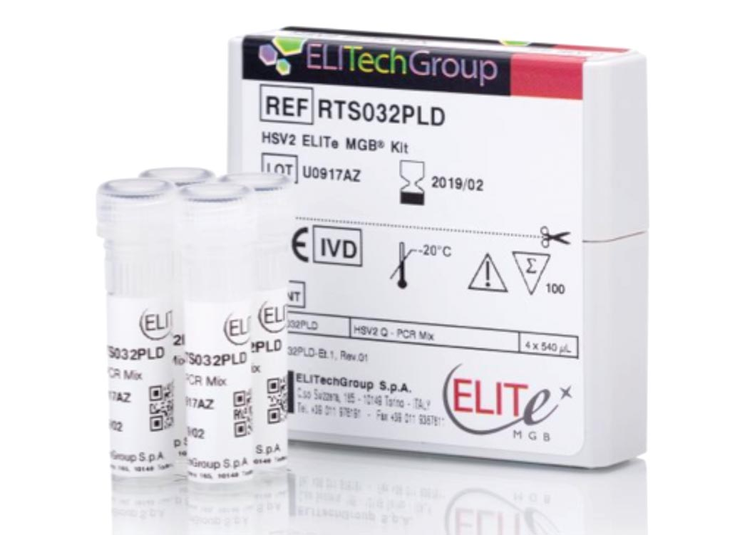 Image: The HSV2 ELITe MGB Kit is a real-time PCR assay designed for the detection and quantification of type 2 herpes simplex virus DNA (Photo courtesy of EliTech Group).