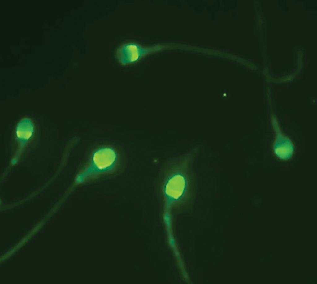 Cap-Score обнаруживает и анализирует картины локализации с использованием флуоресцентной микроскопии, чтобы отличить способных к зачатию сперматозоидов от не способных (фото любезно предоставлено Androvia LifeSciences).