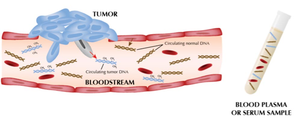 Image: The ability to detect cell-free circulating tumor DNA in blood provides the opportunity to develop non-invasive tests to measure tumor burden and detect molecular signatures in tumors that are associated with resistance to therapy (Photo courtesy of Huntsman Cancer Institute).