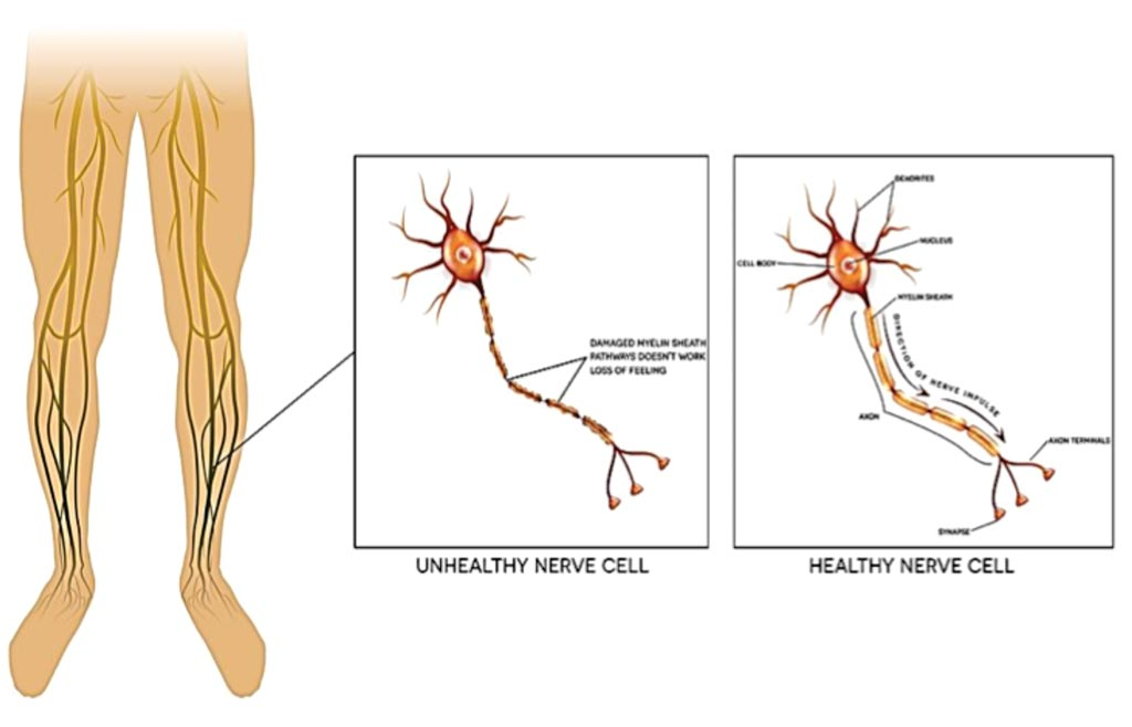Image: Neuropathy is the damage of peripheral nerves; pain and loss of sensation in the extremities and can be caused by diabetes (Photo courtesy of Alnoor Ladhani).