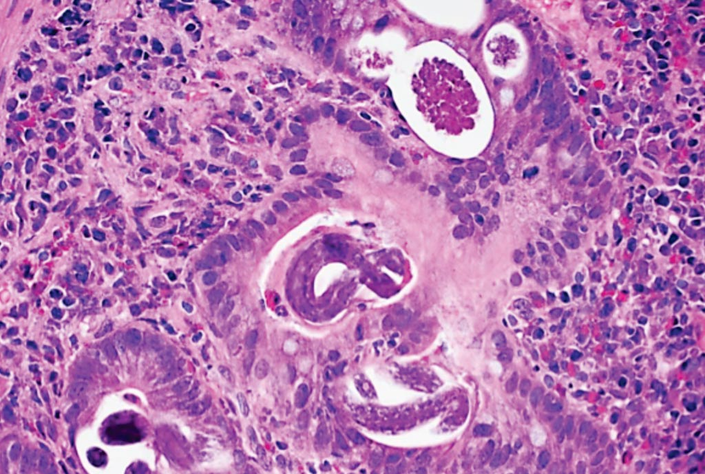 Image: A histopathology of Strongyloides stercoralis in the duodenum (Photo courtesy of Dr. Raul S. Gonzalez, MD).