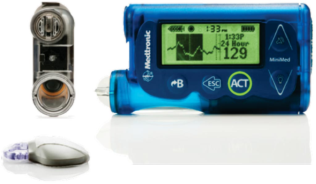 Image: The continuous glucose monitoring (CGM) system (Photo courtesy of Medtronic).