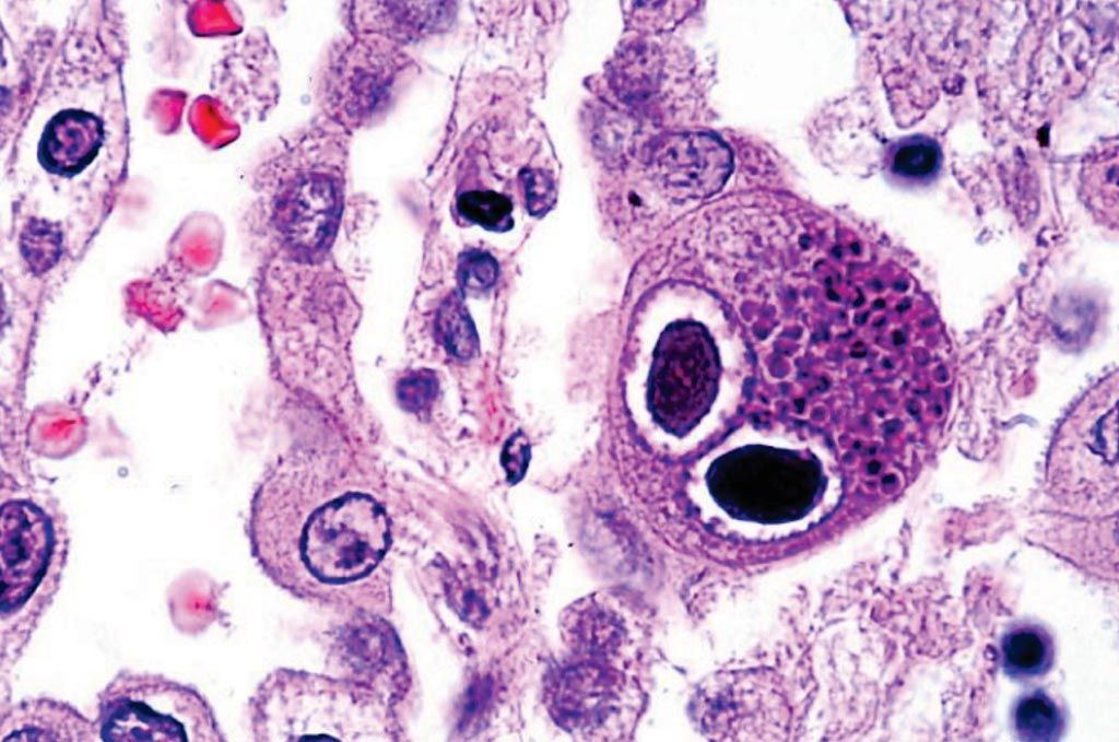 Image: A histopathology of cytomegalovirus infection in the lung showing typical owl-eye inclusions; FDA clears new CMV test for newborns (Photo courtesy of Danny Wiedbrauk, PhD).
