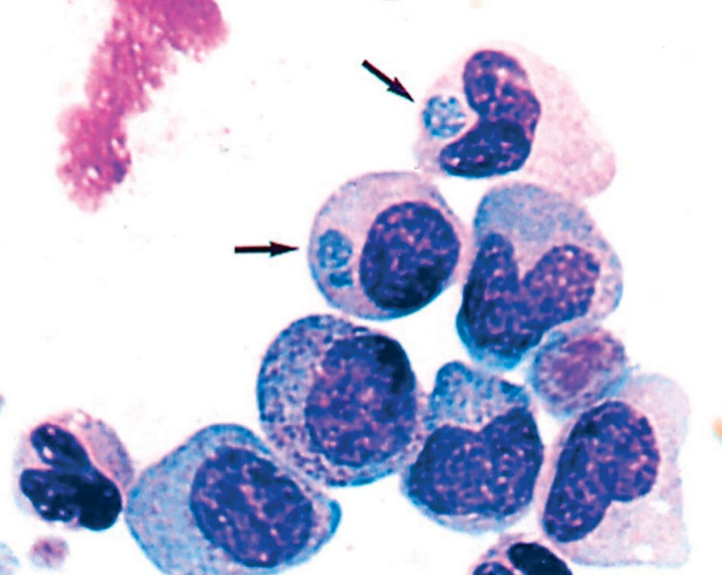 Image: Photomicrograph of a buffy coat smear of the patient's blood collected on the third hospital day. Anaplasma phagocytophilum inclusions are seen in the cytoplasm of two different granulocyte stages (a metamyelocyte and a myelocyte). Arrows indicate morulae (Photo courtesy of Westchester Medical Center).