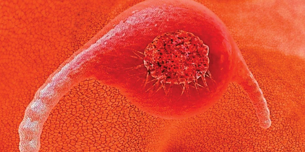 Image: A new screening method for cervical cancer has proven 100% accurate in testing (Photo courtesy of Health News).