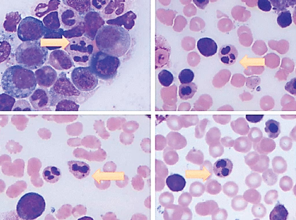 Image: Howell-Jolly body–like inclusion within neutrophil (arrow). It appears as a completely detached and densely basophilic inclusion in the cytoplasm of neutrophil. Photos were taken from different cases (Photo courtesy of University of Texas Health Science Center at Houston).