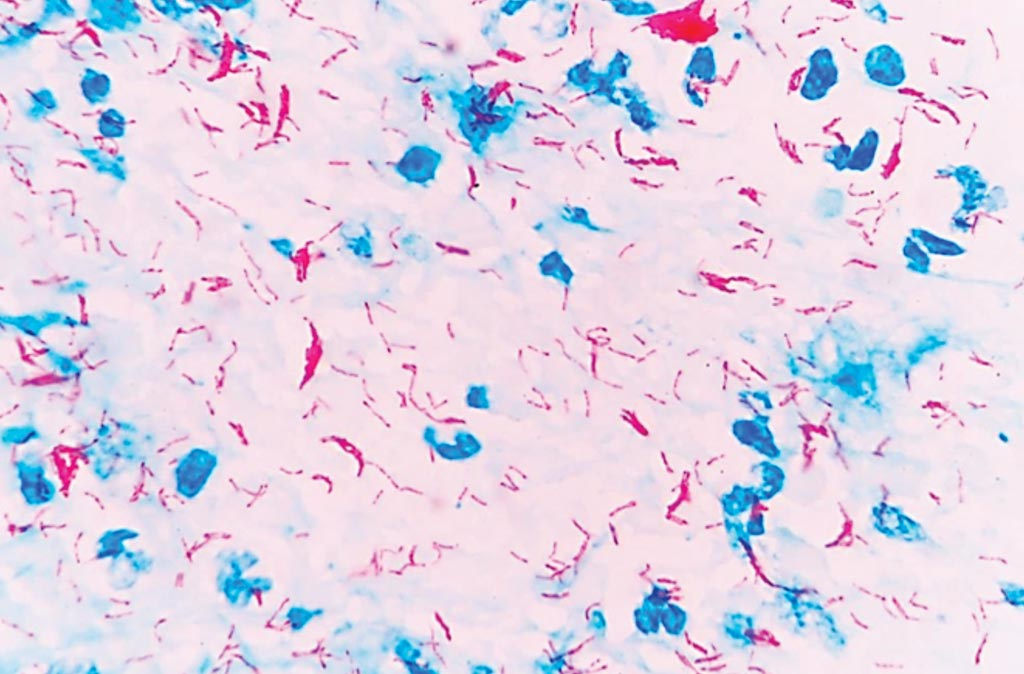 Image: Photomicrograph of Acid-fast Ziehl-Neelsen Staining of Mycobacterium tuberculosis in a sputum smear (Photo courtesy of Rockefeller University).
