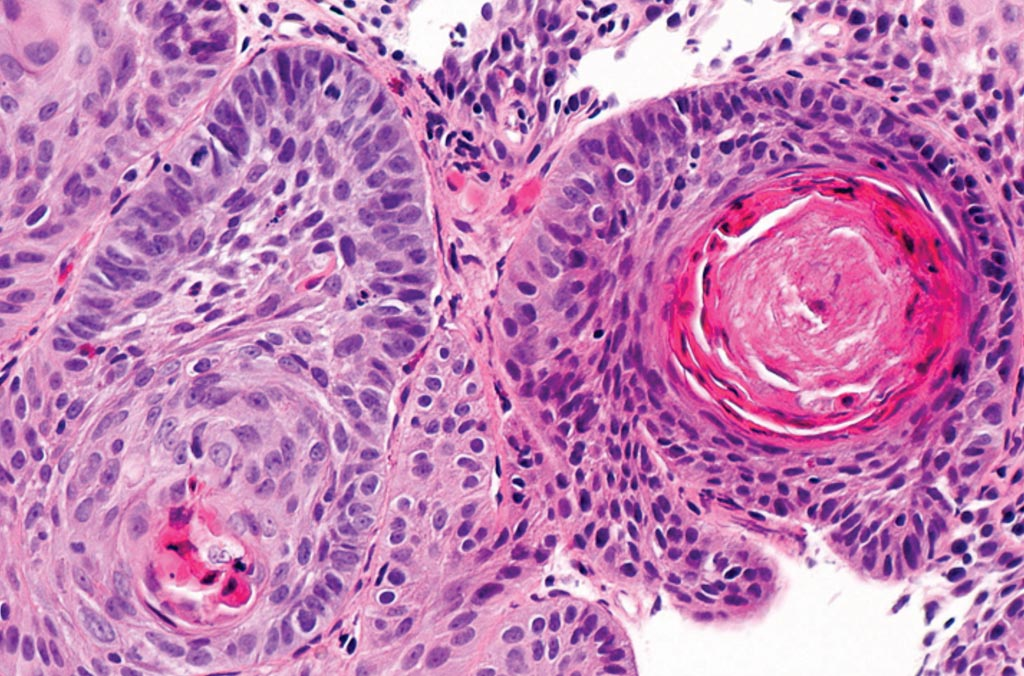 Image: A histopathology of squamous cell carcinoma of the esophagus (Photo courtesy of Nephron).
