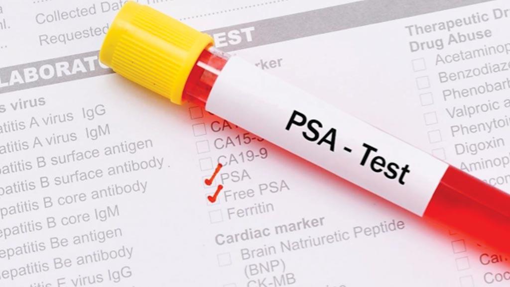 Пациенты с воспалительным заболеванием кишечника, у которых повышен уровень ПСА, могут подвергаться риску рака простаты (фото любезно предоставлено Гарвардским университетом).