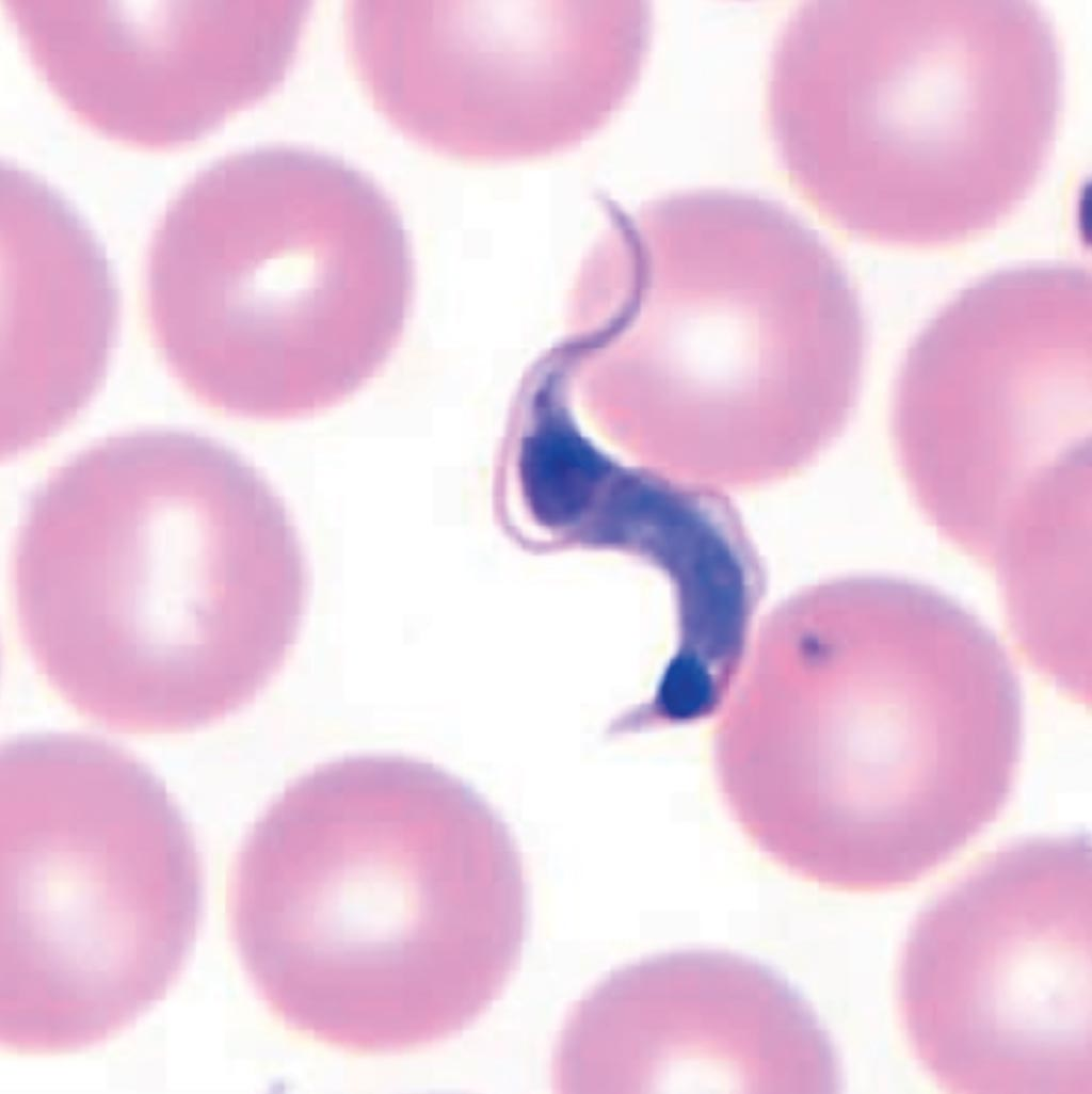 Image: Trypanosoma cruzi in thin blood smears stained with Giemsa (Photo courtesy of Centers of Diseases Control and Prevention).