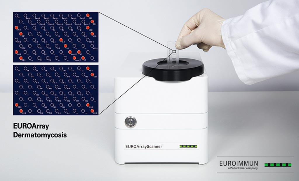 Image: The EUROArray Dermatomycosis assay (Photo courtesy of Euroimmun).