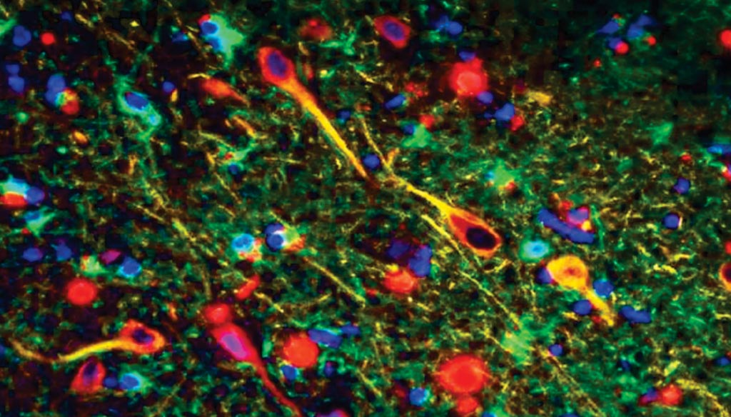 Image: Porphyromonas gingivalis gingipains in the neurons of Alzheimer\'s brain. P. gingivalis gingipains = red, neurons = yellow, astrocytes = green (Photo courtesy of Cortexyme).