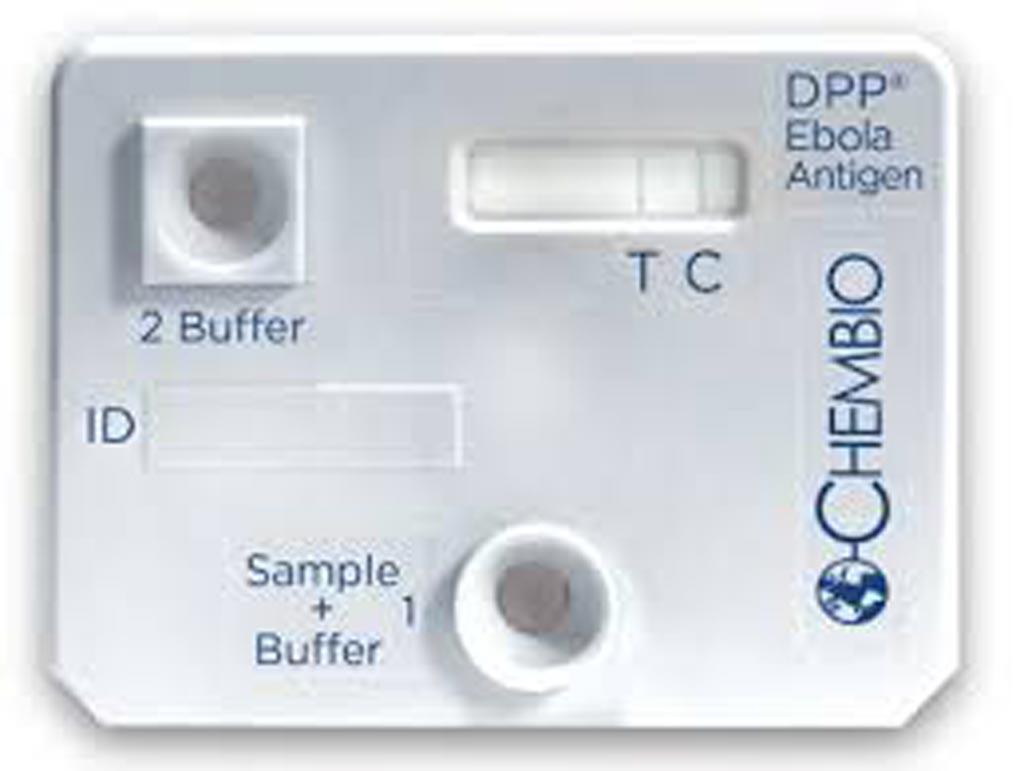 Тест на выявление вируса Эбола получил разрешение для использования в экстренных случаях (фото любезно предоставлено Chembio Diagnostic Systems).