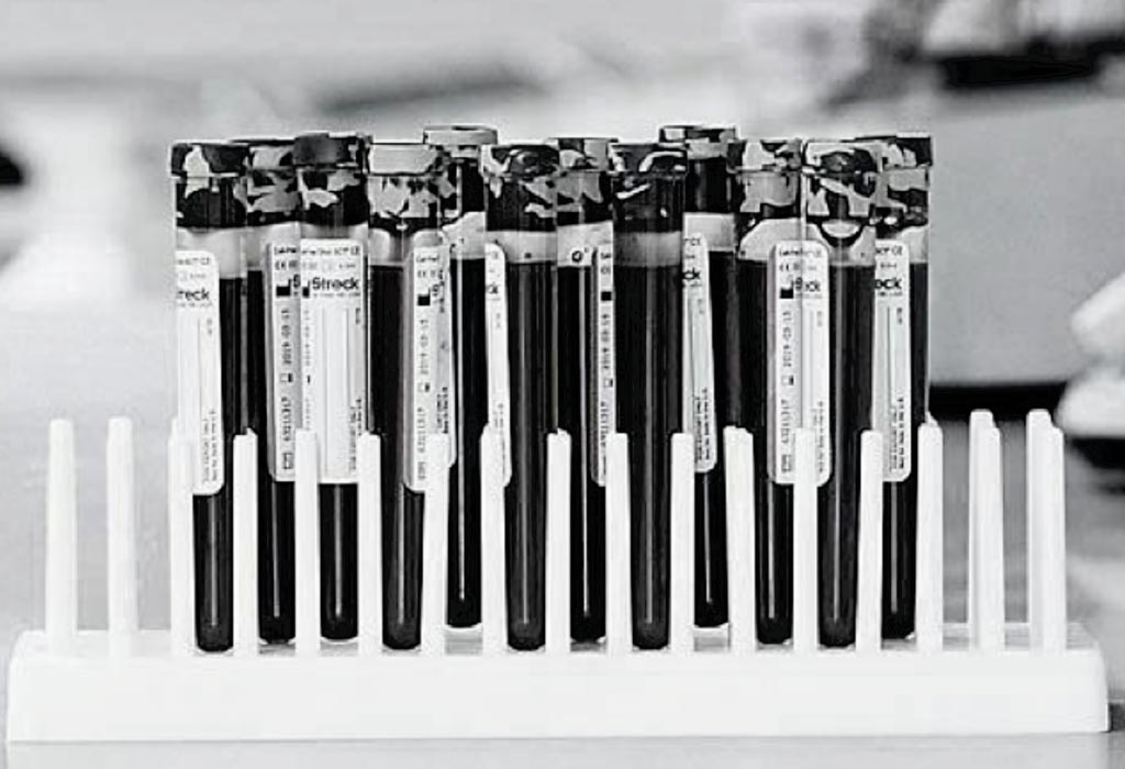 Image: Blood filled tubes used to preserve and stabilize cell-free DNA are also used in the PreSeek screening test (Photo courtesy of Streck).