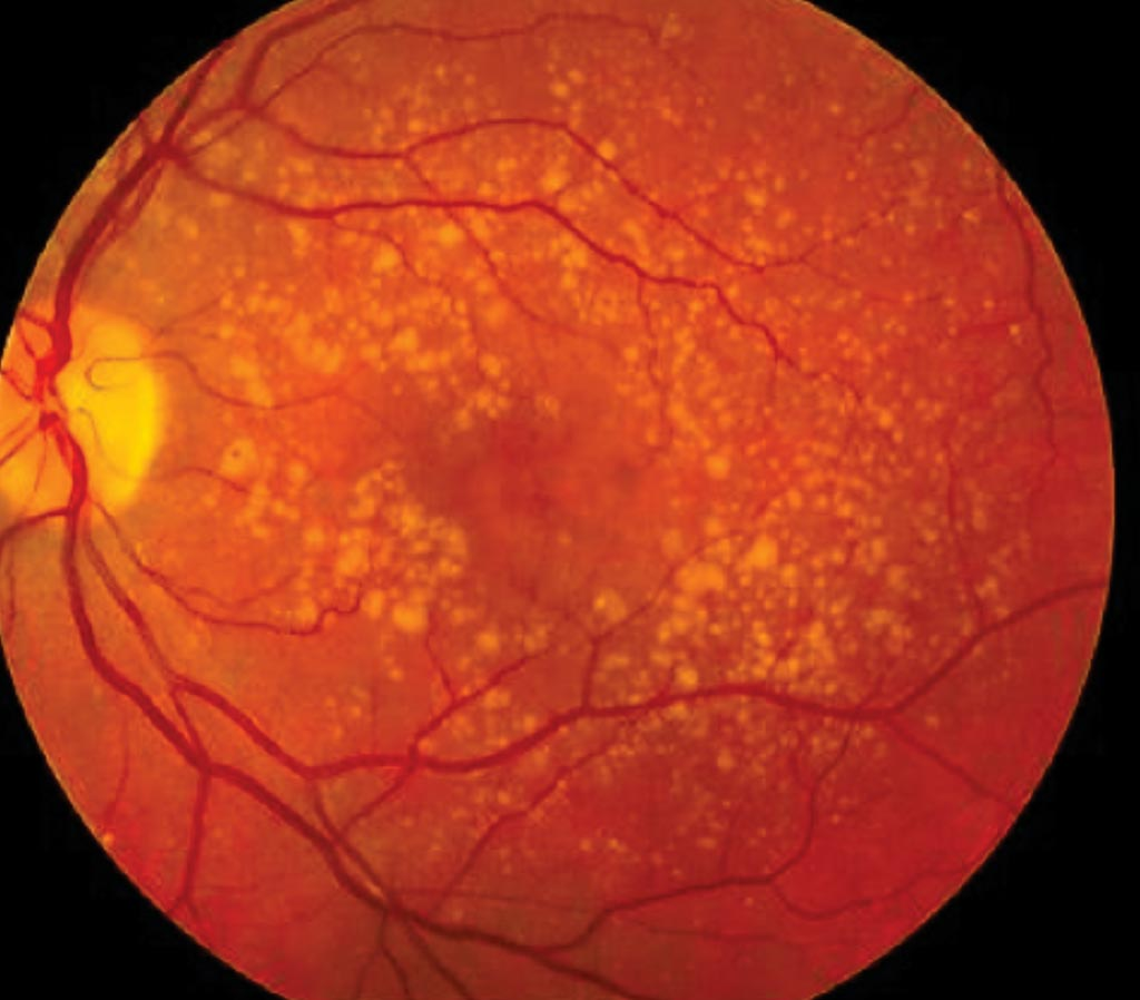 Image: A fundus photo showing intermediate age-related macular degeneration (Photo courtesy of National Eye Institute).
