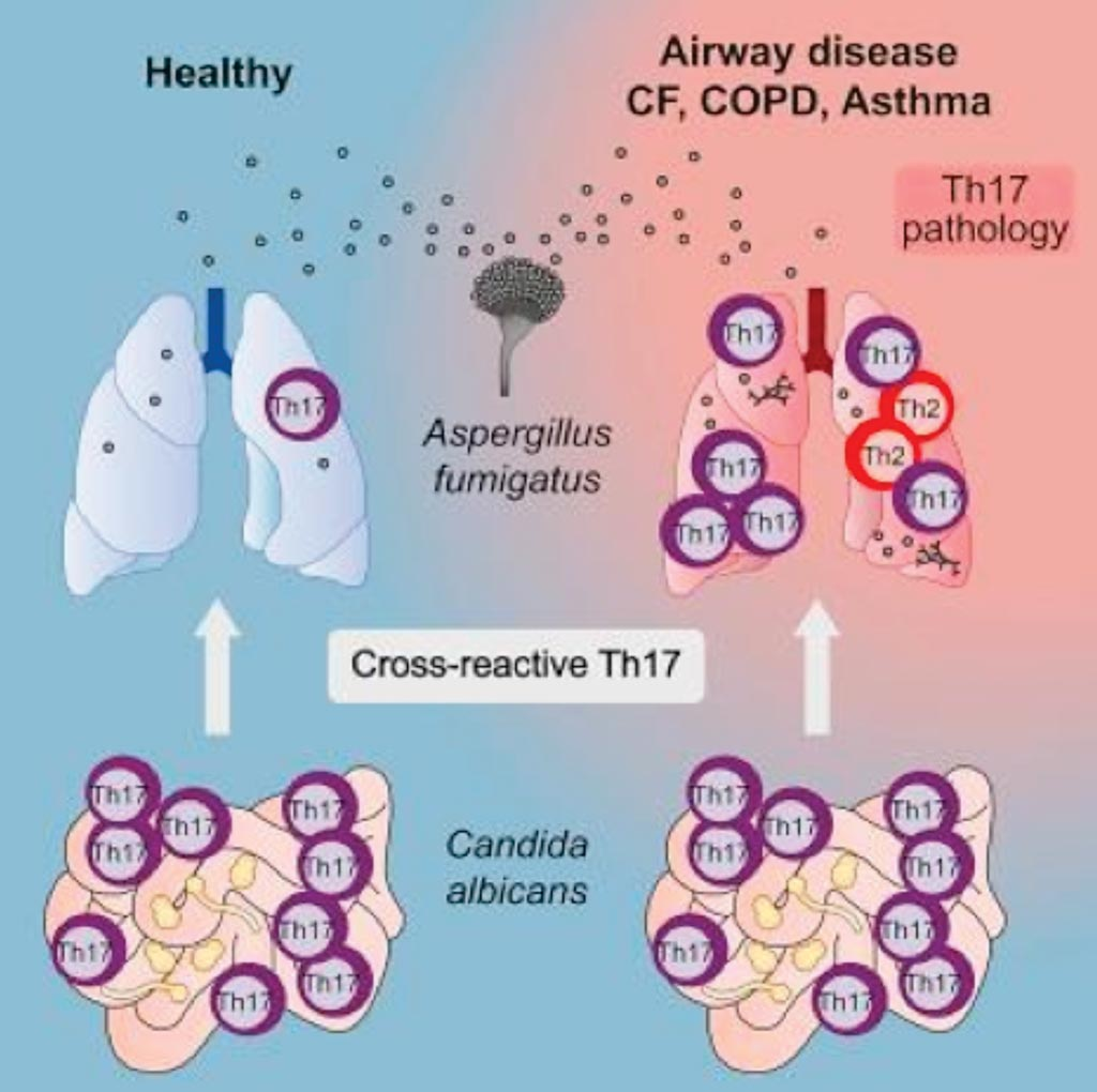 Image: A diagram of how human anti-fungal Th17 immunity and pathology rely on cross-reactivity against Candida albicans (Photo courtesy of the University of Kiel).