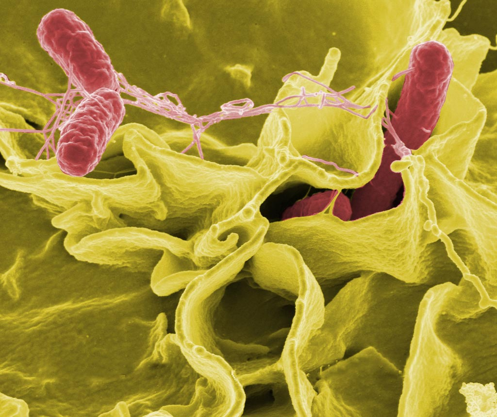 Image: The Host Response to Microbe Analysis platform can be tailored for different pathogens including Salmonella enterica (Photo courtesy of Wikipedia).