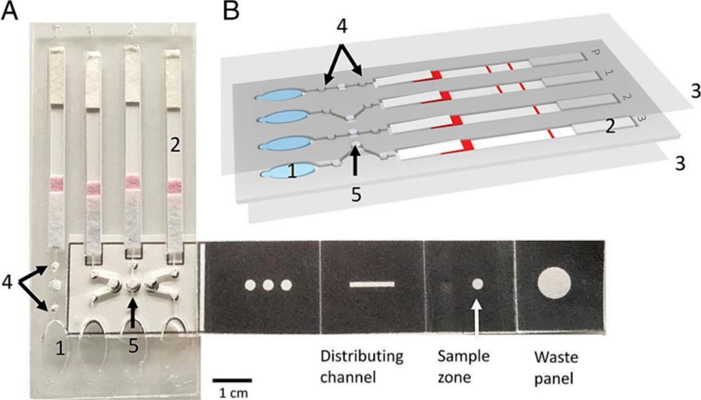 Image: A paper-based microfluidic device enables multiplex LAMP-based detection of malaria in blood (Photo courtesy of University of Glasgow).