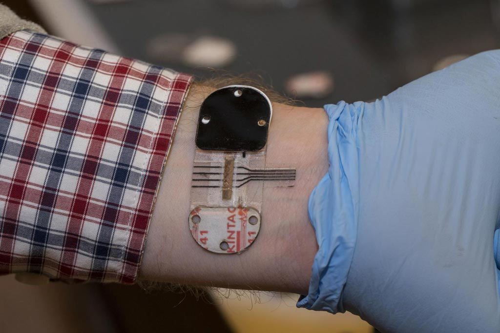 Image: The sensor stimulates sweat under a tiny patch, even when its wearer is cool and resting. The sensor can for a period of hours provide noninvasively the same information found in the blood (Photo courtesy of Joseph Fuqua, University of Cincinnati Creative Services).