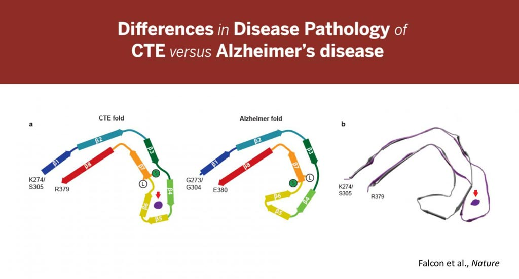 Image: These images highlight the differences found in the tau folds associated with Alzheimer\'s disease and Chronic Traumatic Encephalopathy (CTE). They also show an unidentified element found in CTE that does not exist in Alzheimer\'s disease (Photo courtesy of Indiana University School of Medicine).