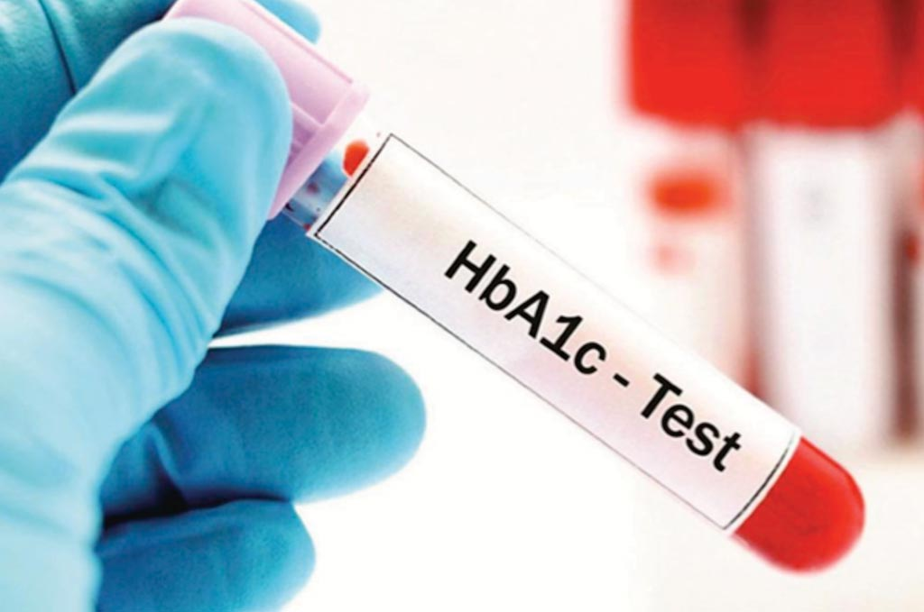 Image: The glycated hemoglobin or HbA1c test should not be solely used to determine the prevalence of diabetes (Photo courtesy of the Alberta Diabetes Foundation).