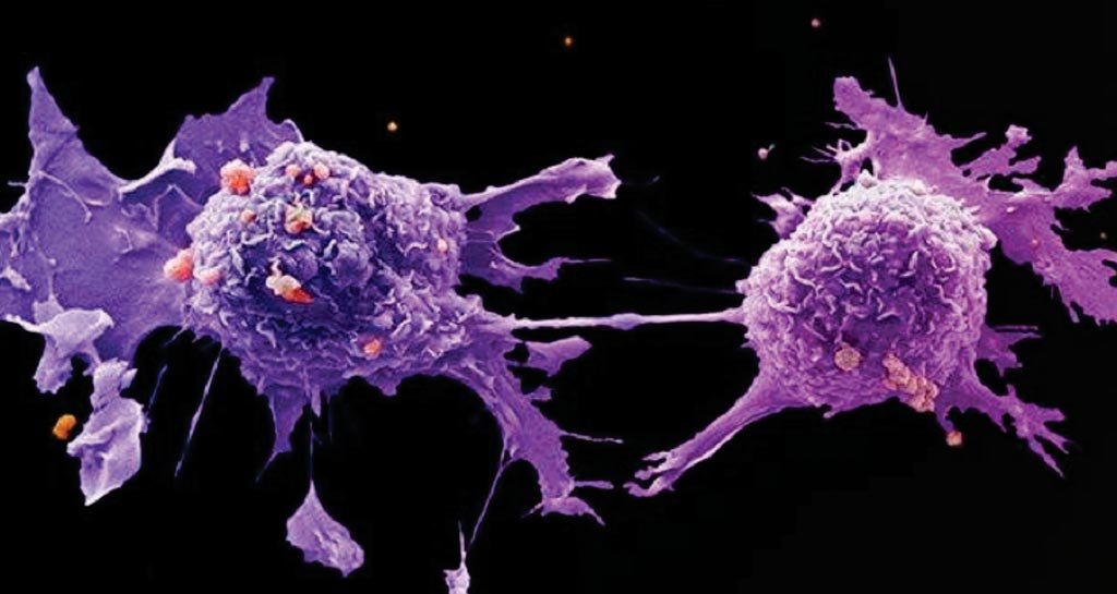 Image: A scanning electron micrograph (SEM) of lung cancer cells (Photo courtesy of Cancer Research UK).