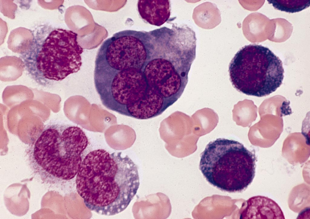 Image: A bone marrow smear from a case of acute erythroid leukemia showing a multinucleated erythroblast with megaloblastoid nuclear chromatin (Photo courtesy of Wikimedia Commons).