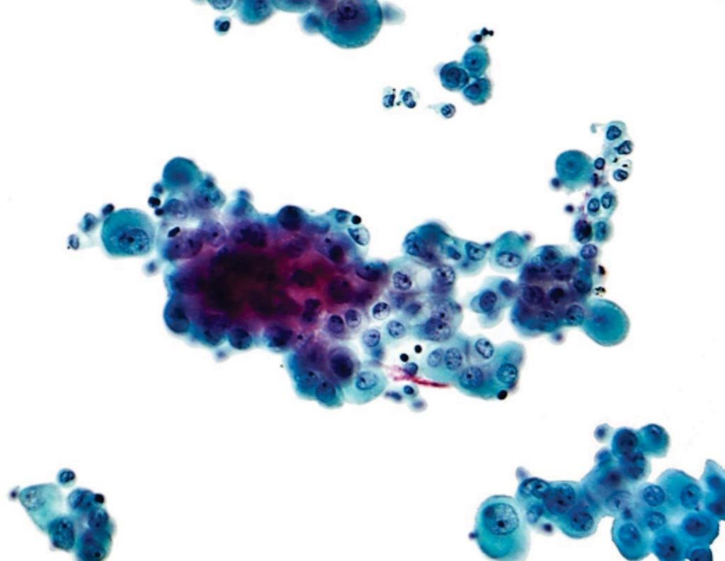 Image: A photomicrograph of a pleural fluid cytopathology specimen showing mesothelioma (Photo courtesy of Nephron).