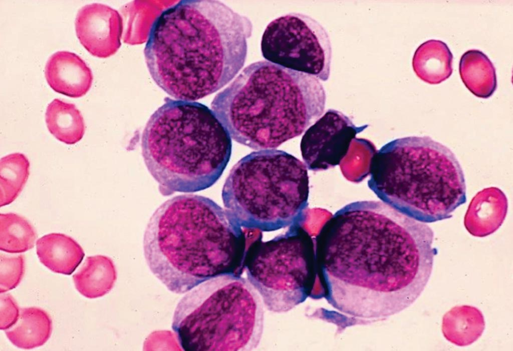 Image: A photomicrograph of acute myeloblastic leukemia from a bone marrow sample (Photo courtesy of Shutterstock).