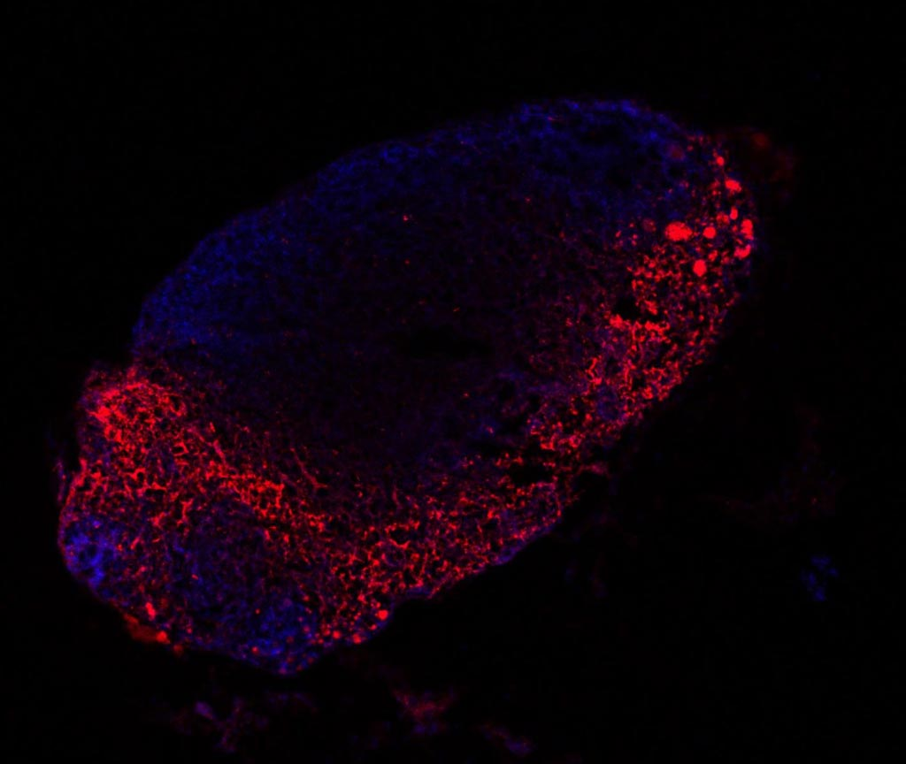 Image: The distribution of melanoma-derived exosomes (red) in mouse lymph nodes (blue) (Photo courtesy of Centro Nacional de Investigaciones Oncológicas).