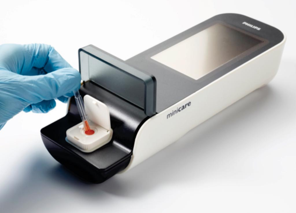 Image: The Minicare I-20 handheld diagnostics platform is designed to detect multiple target molecules at very low concentrations in a single 'finger-prick' blood sample, and display the results on a handheld analyzer within minutes (Photo courtesy of Philips Healthcare).