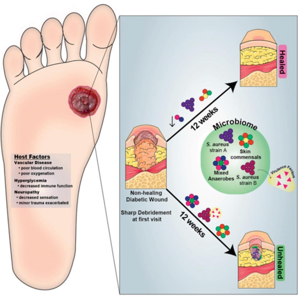 Image: A graphic representation of Strain- and Species-Level Variation in the Microbiome of Diabetic Wounds Is Associated with Clinical Outcomes and Therapeutic Efficacy (Photo courtesy of the University of Pennsylvania).