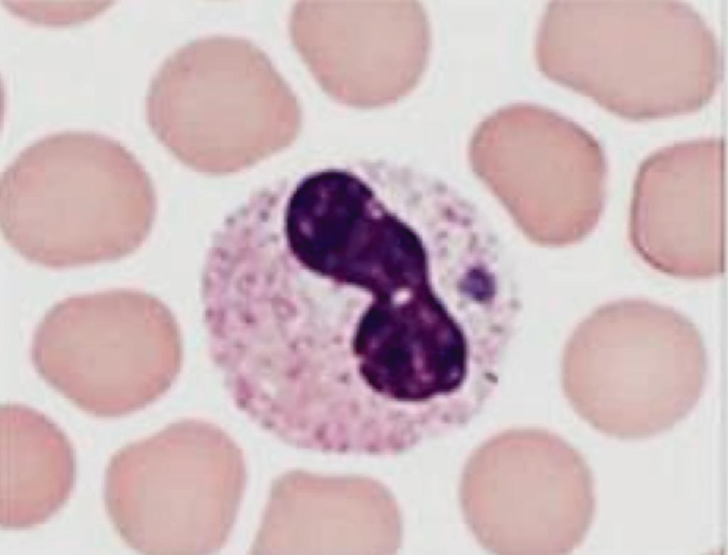 Image: A visualization of morulae in the cytoplasm of a granulocyte during examination of blood smears is highly suggestive of a diagnosis of Human Granulocytic Anaplasmosis (Photo courtesy of the US Centers for Disease Control and Prevention).